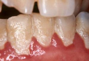 teeth with heavy biofilm