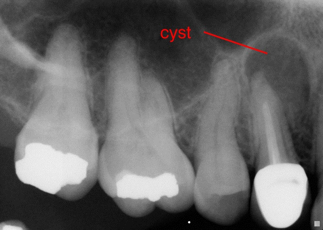 root canal cyst