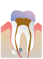 molar with root canal and amalgam